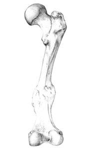 Broken and healed femur bone